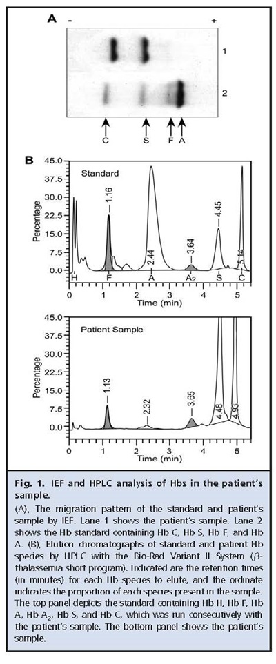 Fig 1 IEF and HPLC analysis of Hbs in the patient's sample