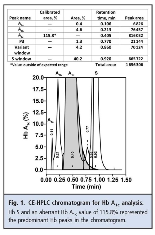 CE-HPLC chromatogram for Hb A1c analysis