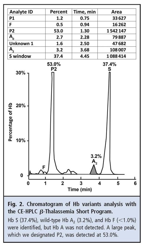 Fig 2 Chromatogram of Hb variants analysis with the CE-HPLC beta-thalassemia short program