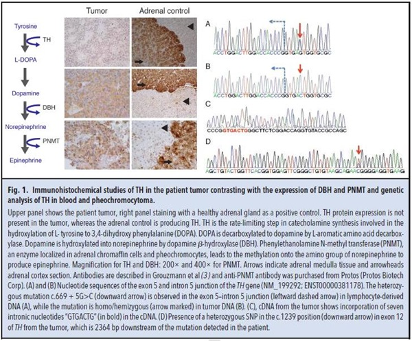 Fig 1. Immunohistochemical studies of TH in the patient tumor contrasting iwth the expression of DBH and PNMT and genetic analysis of TH in blood and pheochromocytoma