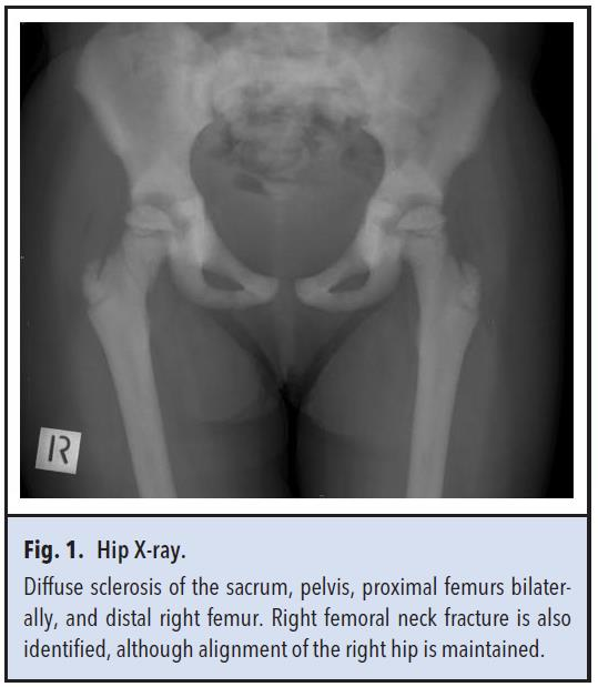 Fig 1. Hip x-ray