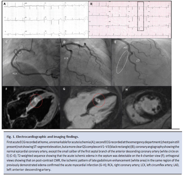 Figure 1 Electrocardiographic and imaging findings