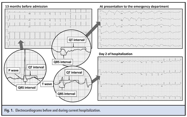 Figure 1electrocardiograms before and during current hospitalizations