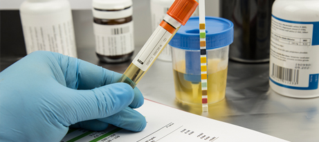 A gloved hand holds an orange-topped test tube; in the background is a urine sample.