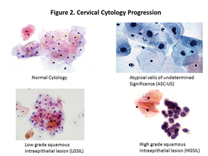 cervical cytology progression
