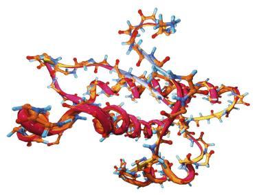 Prion Creutzfeldt Jakob Disease